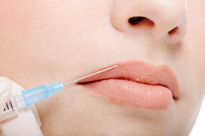Si vous êtes tentés par du collagène lèvres, lisez ceciCosmetic injection in the female lips
